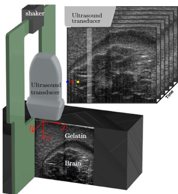 Ultrasonic Imaging Of Traumatic Brain Injury Tbi