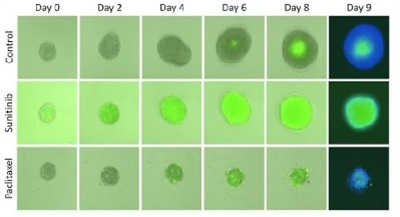 Image-Based, Automated Analysis of 3-D Tumor Spheroids